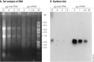 Detection of a α-1-proteinase inhibitor by Northern blot analysis.